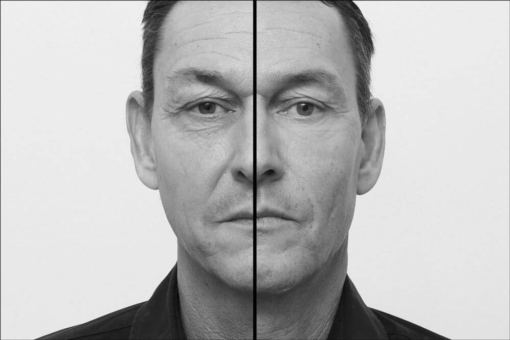 Behandlungsergebnis der Full-Face-Faltenbehandlung beim Mann