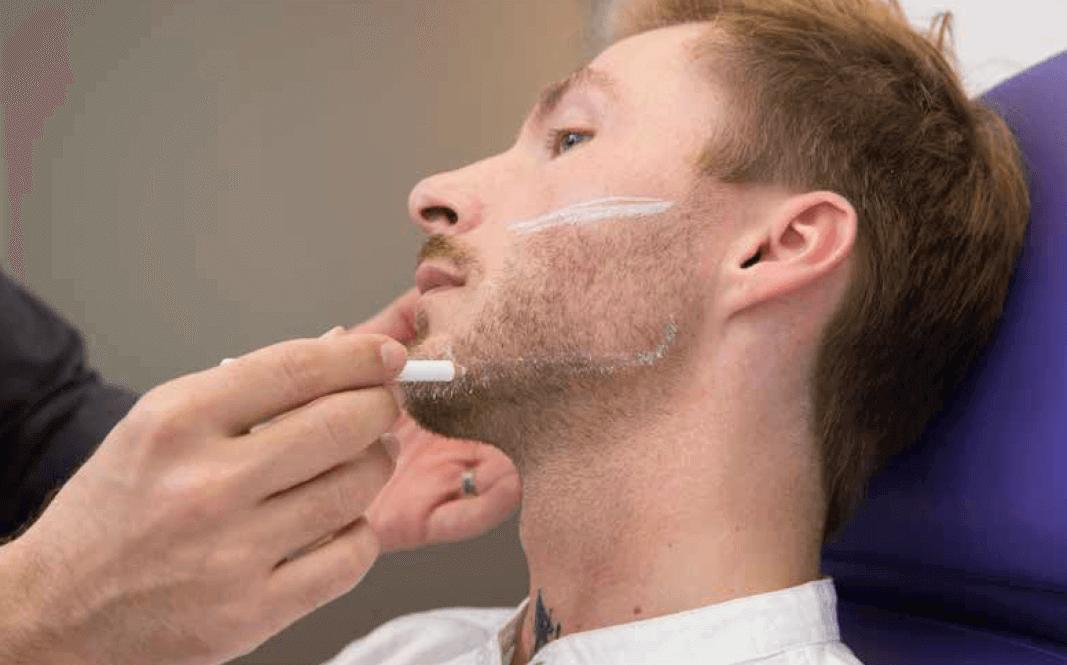 Mascu-Look Behandlung - Dr. Sina Djalaei