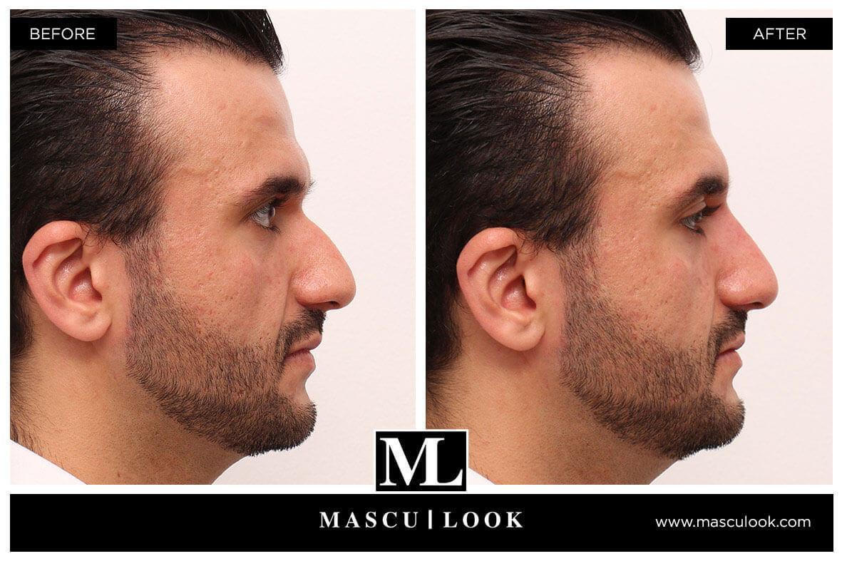 Nasenkorrektur - Mascu-Look